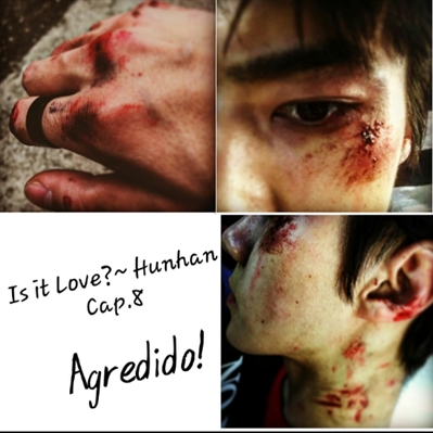 Fanfic / Fanfiction Is It Love?~Hunhan - Capítulo 8 - Agredido!